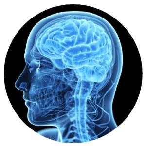 xray of brain